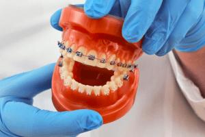 Plano tx orthodontist