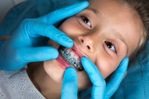Orthodontic treatment in Plano