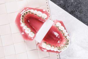 lingual braces in Plano Tx
