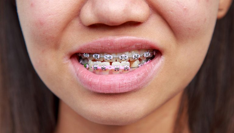 orthodontic services in plano