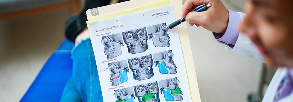surgical orthodontics in plano