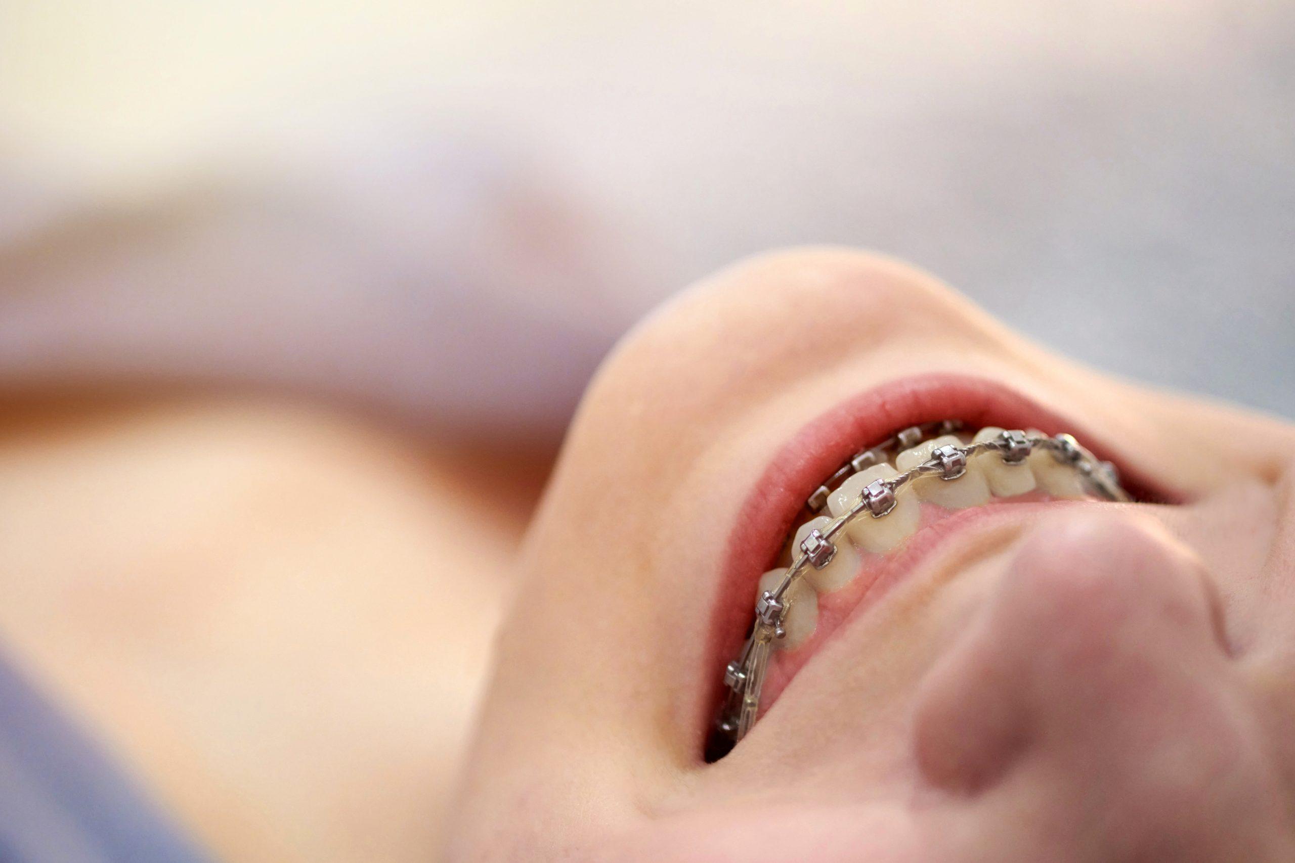 lingual braces in Richardson, Tx