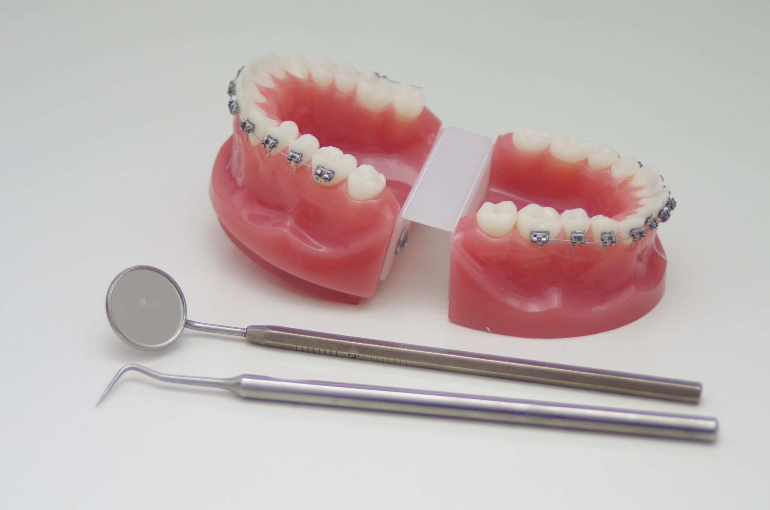 Ceramic Braces in Richardson