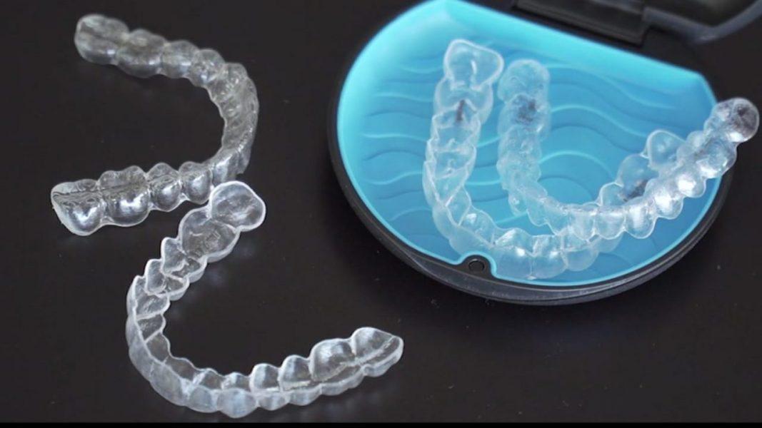 Incognito braces vs lingual vs InBrace braces